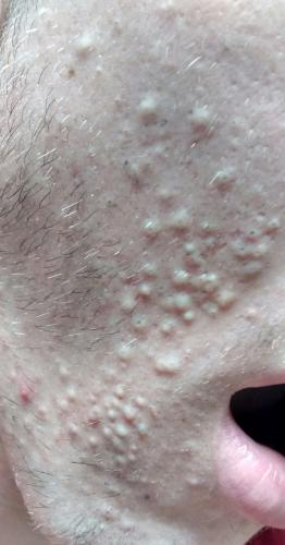 Is This Comedonal Acne Very Bad General Acne