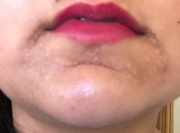 uneven skin texture on chin not acne but maybe related scar