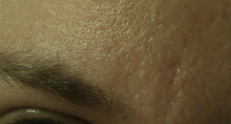 Scars On Forehead And Nose Orange Peel Scar Treatments