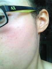 3 months post BP