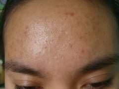 forehead (18th wk)