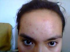 forehead as of April 19, 2012