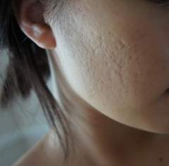 scars even with make up powder