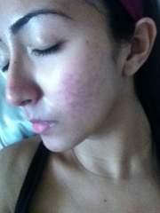 right cheek - 4 months into accutane