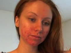 Clear Skin Challenge