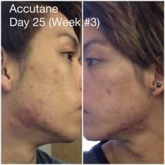 Accutane: Day 25, Week #3