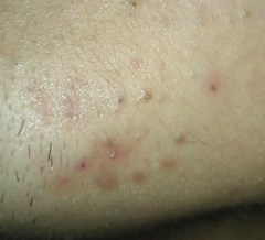 Left Side Chin Acne