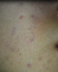 Right Mouth Acne