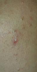 Left side acne cheek 1