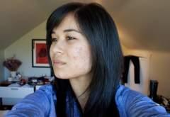 Left cheek (month 4)