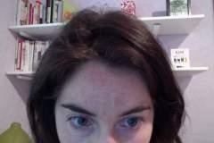 Spiro Week 16 Forehead