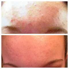 my daughters forehead before and at 5 months