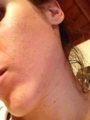 Progression of Face