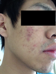 Acne.org regimen progress