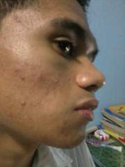 First Week under Acne Treatment