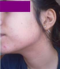 Is this acne ?