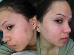 Day 1 of Regimen (Left cheek - Right cheek)