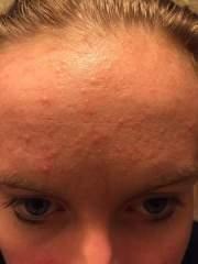 1/6/15 forehead