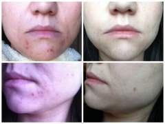 acne difference