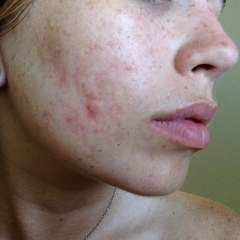 5 months after accutane