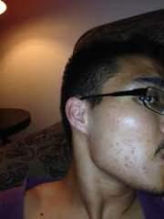 acne2014