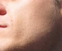 Facial + diamond-tip microdermabrasion