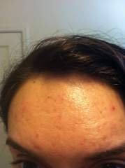 Day 68 - forehead