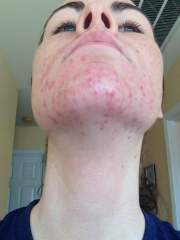 Week One / Day 3  - Proactiv - Chin and Neck
