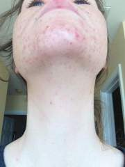 Week 5 - The Regimen - Chin and Neck