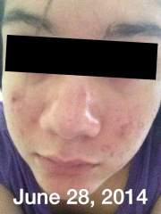 My story Acne