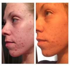 Epiduo 10 day progress