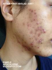 day7 after Isolaz and Laser Genesis treatment