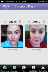 Epiduo & Erythromycin Treatment for Mild-Moderate Acne (Before & After)
