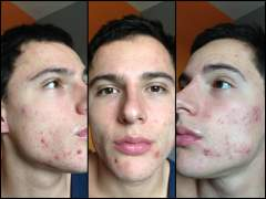Acne Progression - Holistic Treatment - Dietary Change
