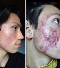 9 july 2015 (7,5 weeks post isotretinoin)  // 13 december 2014 (4 weeks into my isotretinoin treatment)