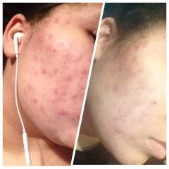 Cvs advanced acne treatment results after two weeks
