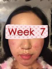 Week 7 Big PROGRESS!