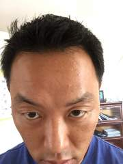 forehead - day 7