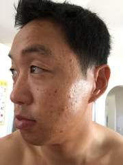 Day 2 Acne.org 3/8/2015