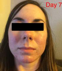 Day 7 of Accutane