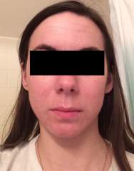 Day 21 of Accutane