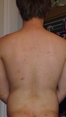 My Accutane Journey
