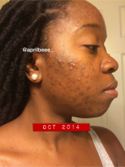 Acne & Dark Spot Journey Part 1