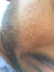 Tiny holes on face