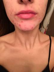 Month 3 Accutane(Absorica) 60mg