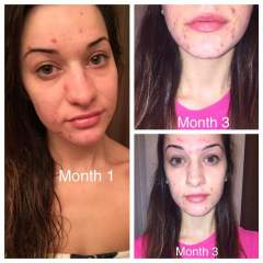 Progress Pic- Accutane Month 3