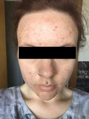 Accutane Journey