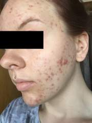 left side start of Accutane