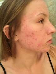 Acne Progression