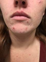 Accutane (Zenatane) Journey